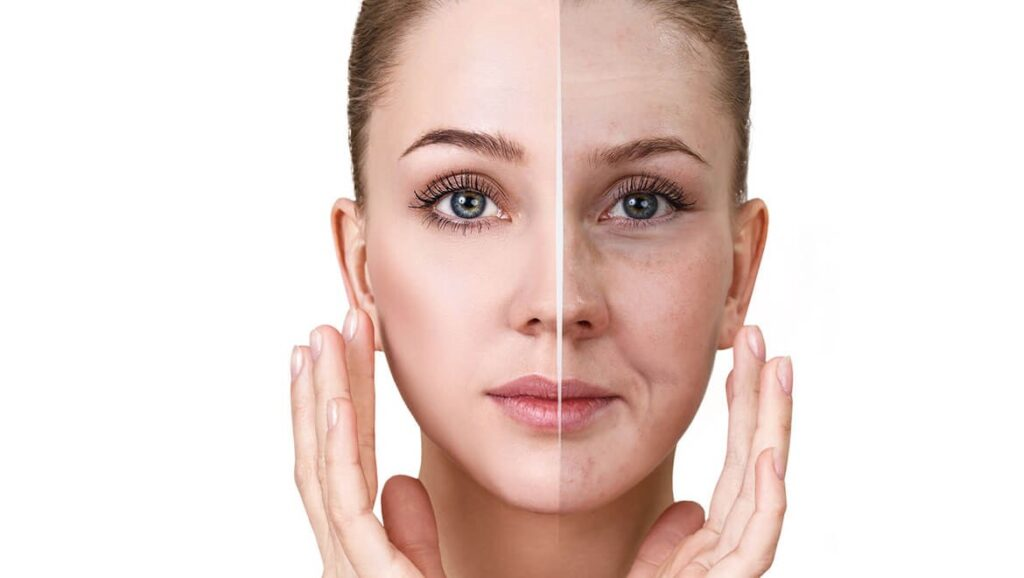 Healthy vs sallow skin