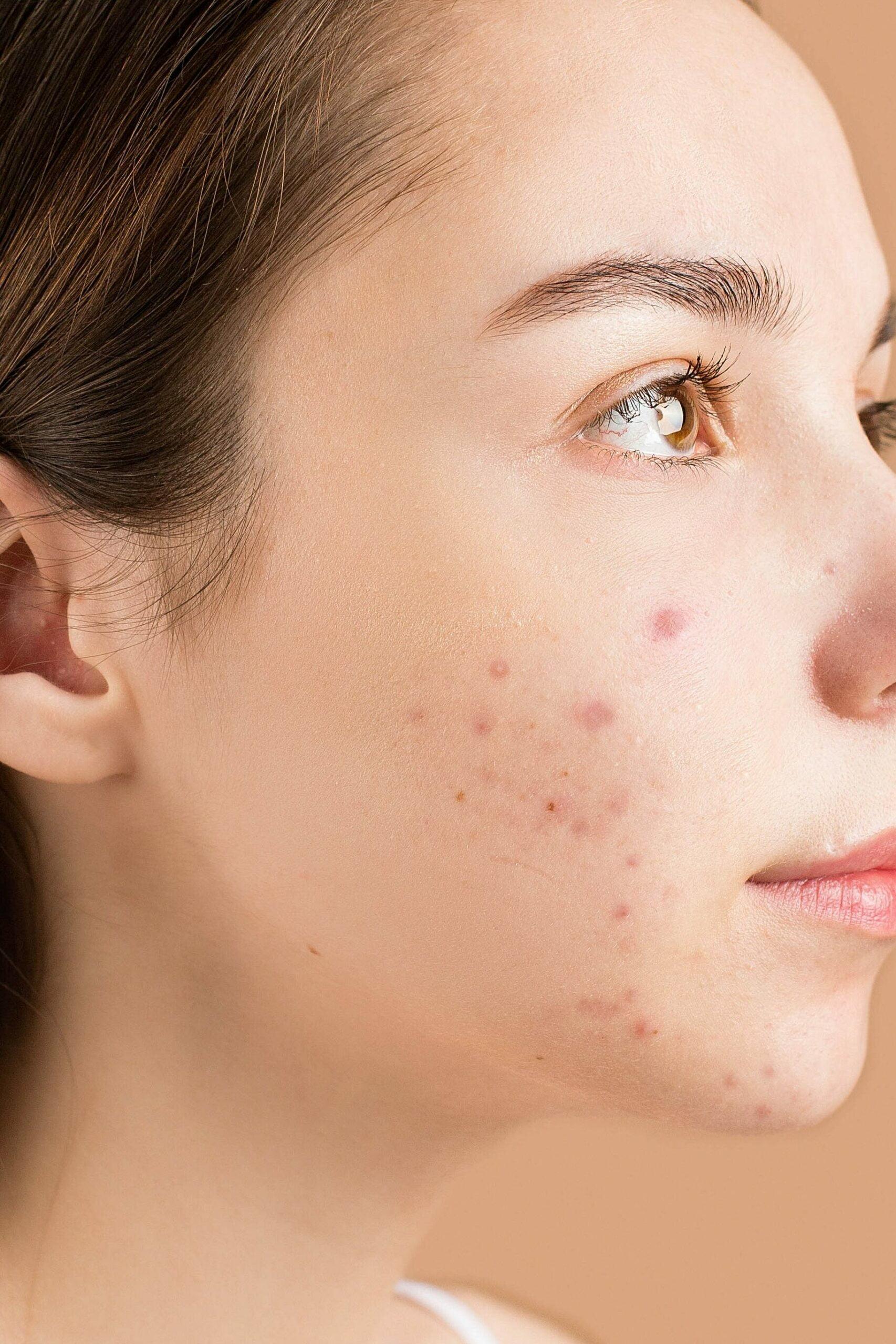 malassezia folliculitis on the face